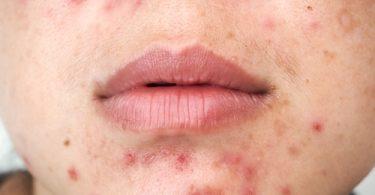 traiter l'acné par la phytothérapie