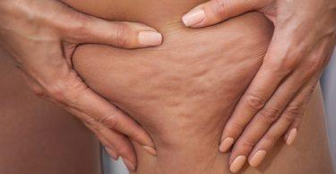 traitement naturel anti cellulite