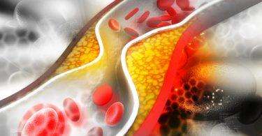 traitement anti cholesterol par la phytothérape